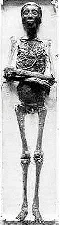 Mumie von Tutanchamun.